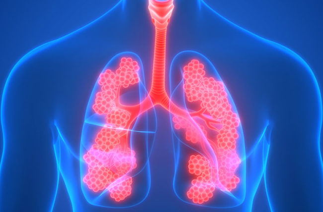 What is COPD (Chronic Obstructive Pulmonary Disease)?